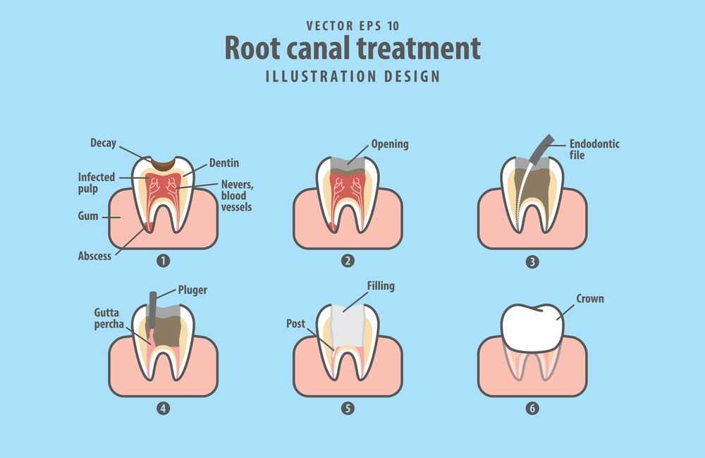 Root Canal or Extraction: Which Choice is Best?