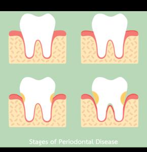 Treating Periodontal Disease
